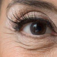 Убираем морщины под глазами: народные и косметологические методы