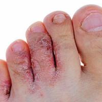 Этот коварный грибок на ногах: профилактика и лечение