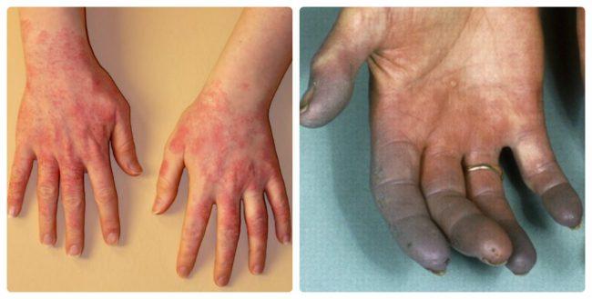 Краснота и синюшность кожи рук