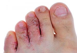 Чем лечится грибок на ногах между пальцами