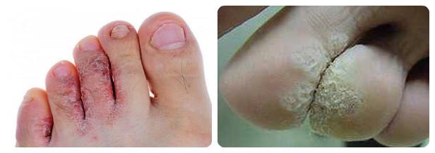 Аналог средства от грибка ногтей на ногах