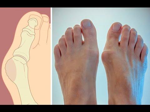 Как избавиться от косточек на ногах. Причины появления косточек на ногах