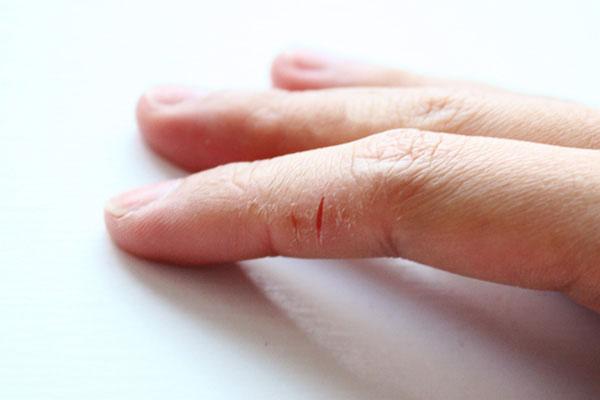 после аллергии кожа шершавая у взрослого