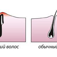 После эпиляции: избавляемся от вросших волосков