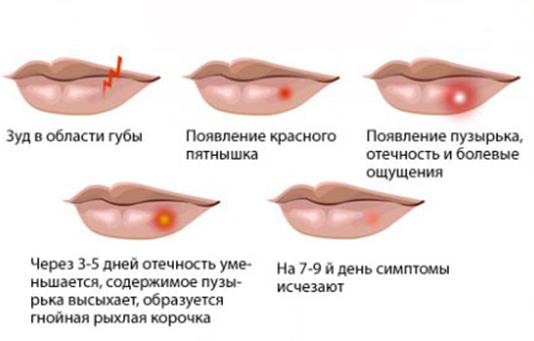 Стадии герпеса на губе