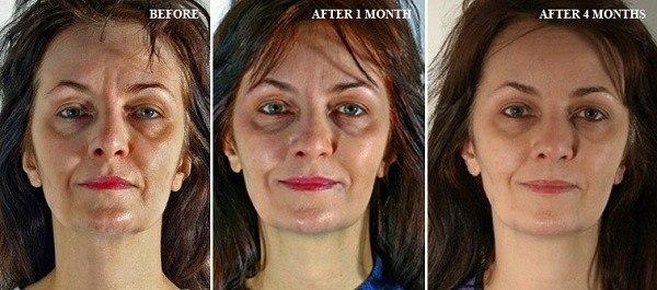 Результаты упражнений: до и после