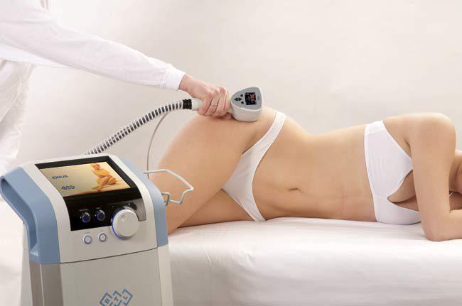 Аппаратная косметология для удаления растяжек