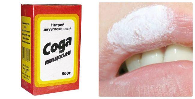 Сода от простуды на губе