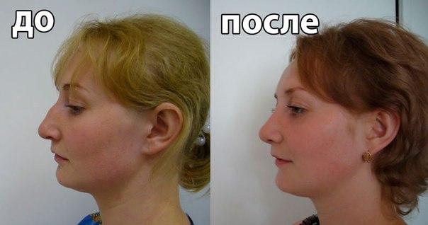 Результаты упражнений для шеи: до и после