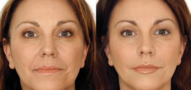 Результаты применения маски: до и после