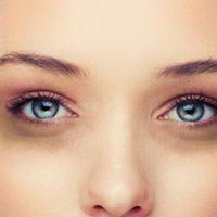 Темные круги вокруг глаз у женщин: причины появления и способы избавления
