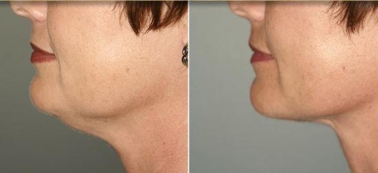 Результаты косметологического удаления второго подбородка: до и после