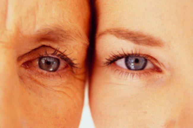"Морщины у глаз - ""гусиные лапки"""