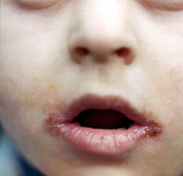 Заеды на губах у ребенка