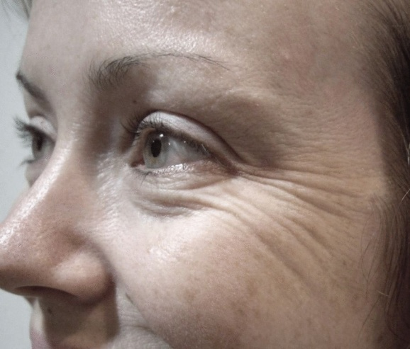 Морщины вокруг глаз после 40 лет