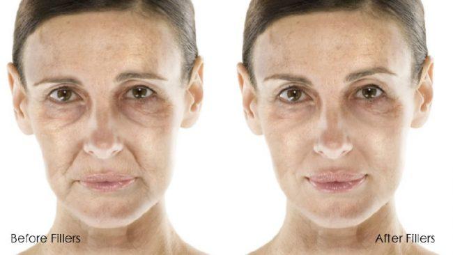 Результаты биоармирования: до и после