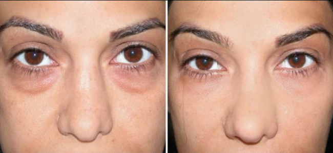 Результаты медицинских методов: до и после