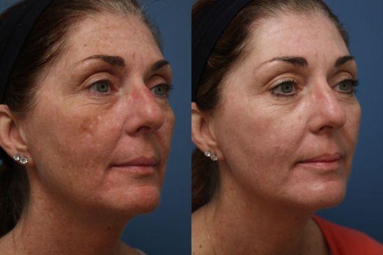 Лицо женщины до и после энзимного пилинга