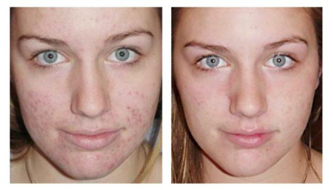 Результаты пилинга: до и после