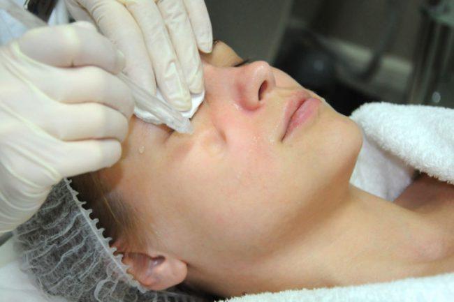 Процедура газожидкостного пилинга лица