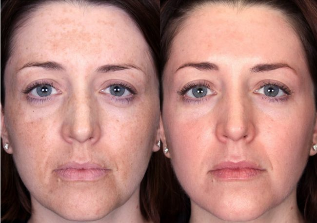 Результаты процедуры: до и после