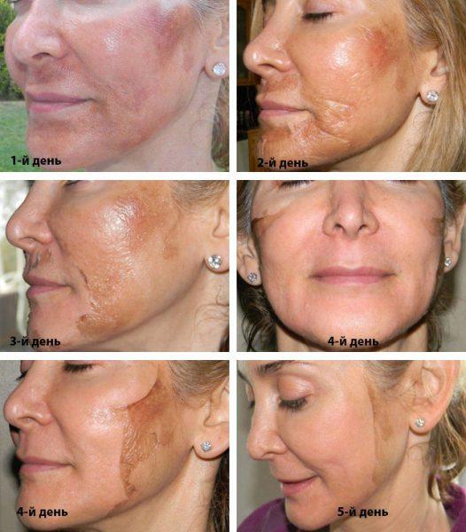 Состояние кожи после процедуры