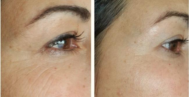 Результаты буккального массажа лица: до и после