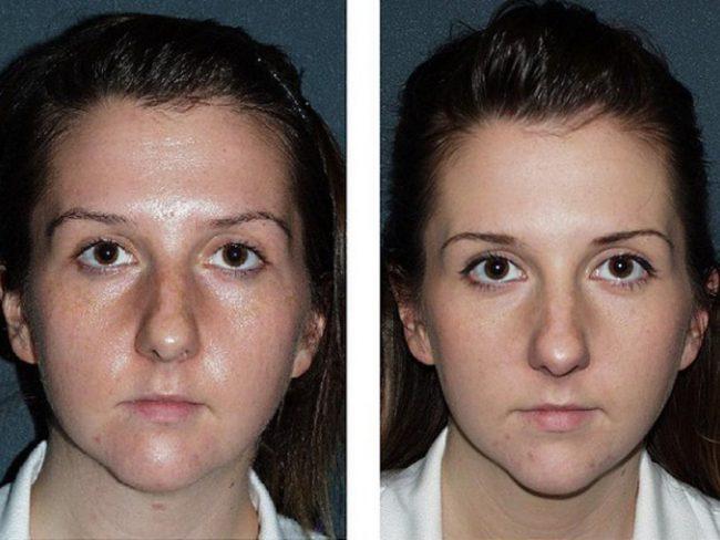 Эффект от процедуры: до и после