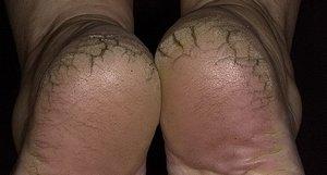Как избежать появления трещин на пятках