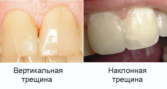 Виды трещин зубов
