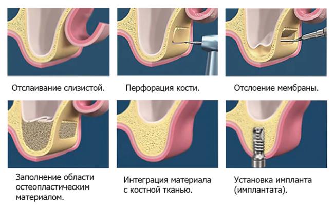 Синус-лифтинг верхней челюсти
