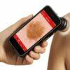 Handyscope - инновационный прибор для цифровой теледерматоскопии